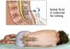 Diagnostika nádorových onemocnění
